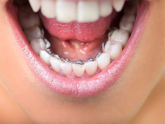 lingual invisible braces in delhi