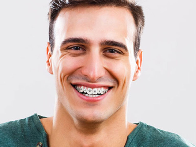 Metal Braces Treatment in Delhi