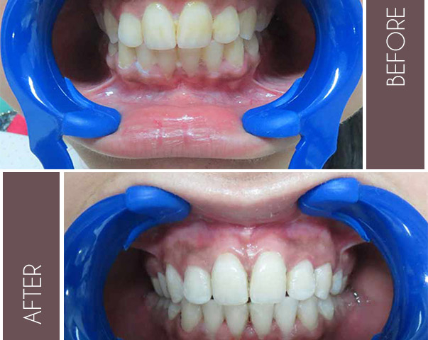 Before and After- Dental Treatment