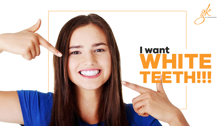 white teeth treatment in delhi