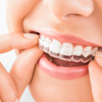 Braces treatment in Delhi